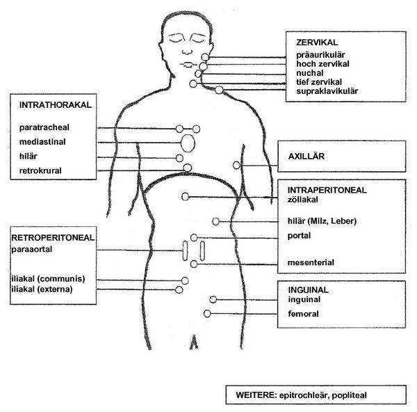 Diffuses Grosszelliges B-Zell-Lymphom Abb 01