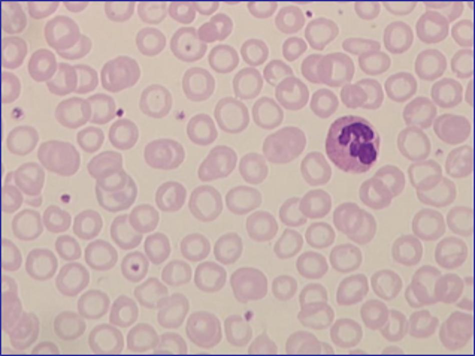 Ausstrich des peripheren Blutes bei einer Eisenmangelanämie